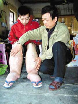 19岁男孩患 大脚病 最肿处周长60厘米